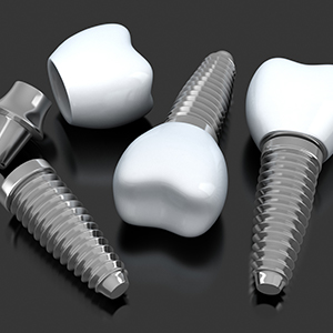 Animated dental implant supported crowns